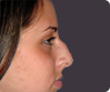 Jaw surgery Thrissur