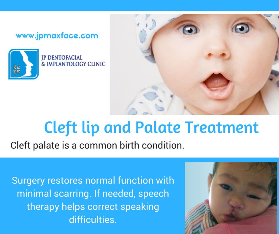 essays on cleft lip and palate Cleft lip and palate if the cleft does not affect the palate structure of the mouth it is  referred to as cleft lip most of these craniofacial clefts are even more rare and.